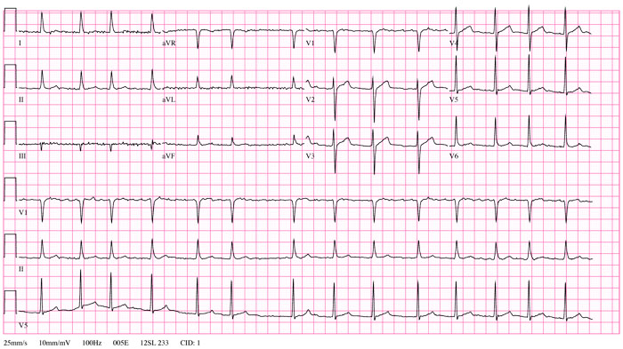 V rhythm for atrial shown lylet cachedclick to arrhythmia Human heart