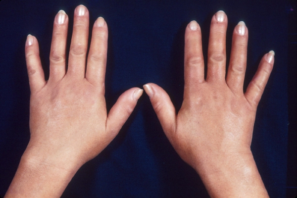 diseases included in the scleroderma group