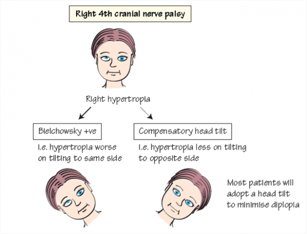 شلل عصب قحفي رابع أيمن Right 4th cranial nerve palsy