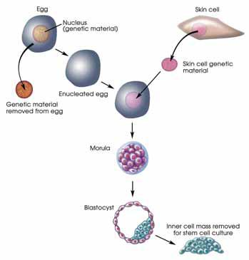 Nuclear Transfer - Stem Cells