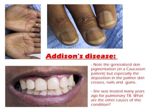 All about Addison disease