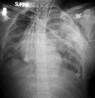 Bilateral Pulmonary Contusions